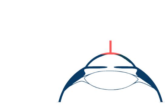 Correction laser